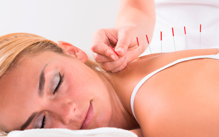 Research shows that acupuncture can improve PCOS